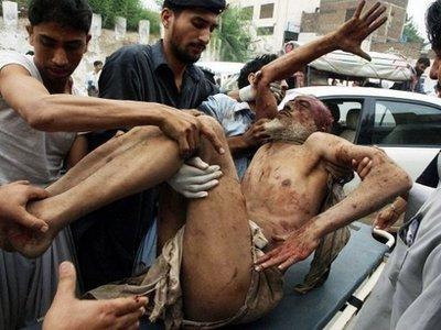 Peshawar Bomb Blast Victim